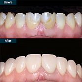 250$ - to 1500$ Dental Veneers