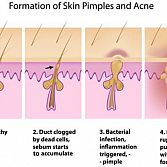 Acne Treatment Specialist · Dermatologist · Cosmetic Laser Dermatology NYC