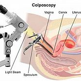 Colposcopy, Cervical Biopsy · Cervix Specialist, Doctor · Gynecologist Midtown Manhattan NYC
