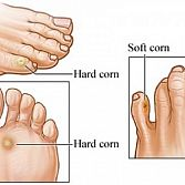 Corn Removal Surgery NYC · New York Corn Removal Podiatrist, Specialist in Midtown Manhattan