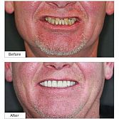 Dental Implants: $1575
