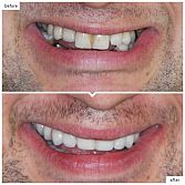 Dental Implants in Downtown Manhattan, NYC