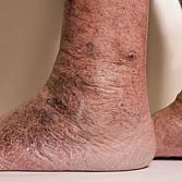 Endovenous Radiofrequency Ablation from Varicose Vein Treatments Center