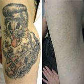 Laser Tattoo Removal | Midtown NYC