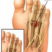 Neuroma Surgery in NYC · Foot Doctor, Specialist in Midtown Manhattan NY