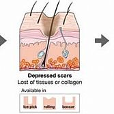Scars Specialist · Dermatologist · Cosmetic Laser Dermatology NYC