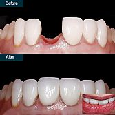 Single Tooth Implant in Brooklyn · Top Rated Implant Dentist