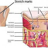 Stretch Marks · Dermatologist · Cosmetic Laser Dermatology NYC