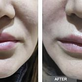 THREAD LIFT IN BROOKLYN NY | THREAD LIFT FACE, NECK, NOSE