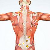 Trigger Point Injections in NYC | Pain Management Doctors Specialists