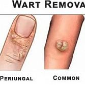 Wart Removal Specialist · Dermatologist · Cosmetic, Laser Dermatology NYC